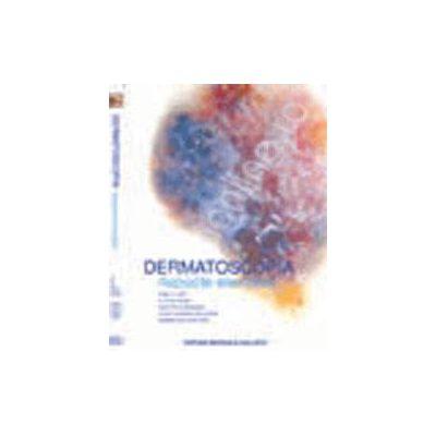 Dermatoscopia. Aspecte Esentiale